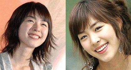 歯茎の整形で成功した韓国女優・・イ・ヨニ