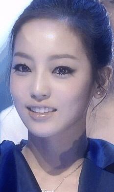 KARA ハラの歯列矯正前後画像