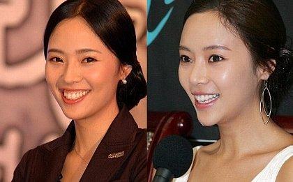 歯茎の整形で成功した韓国女優・・ファン・ジョンウム